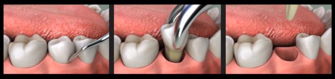 Средства обработки ранок после удаления зубов
