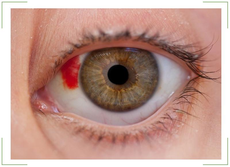 контузия глаза