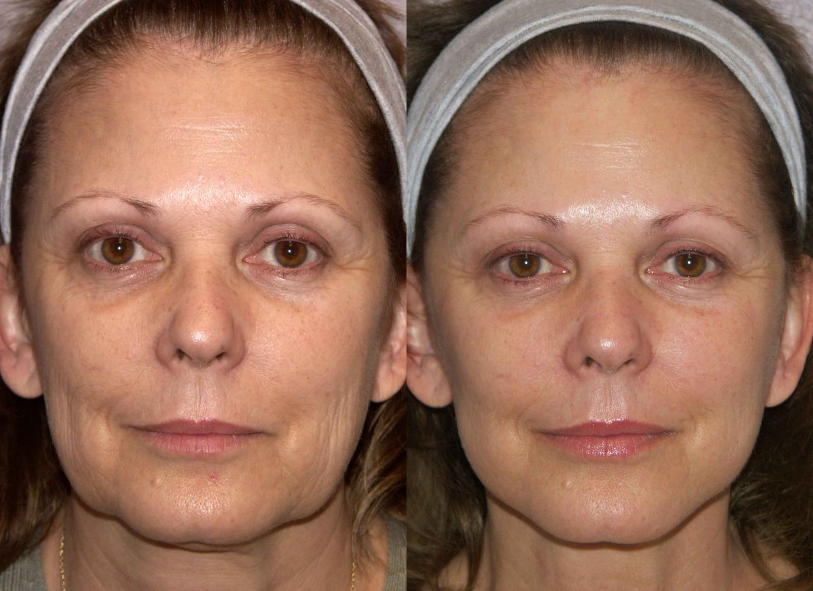 возраст, до и после