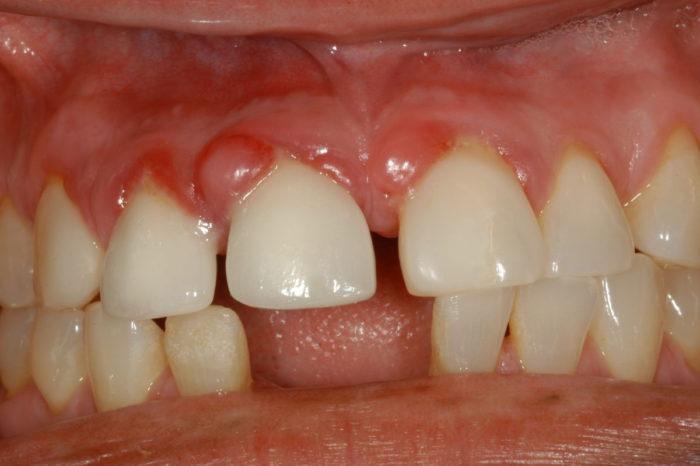 Кистогранулема зуба