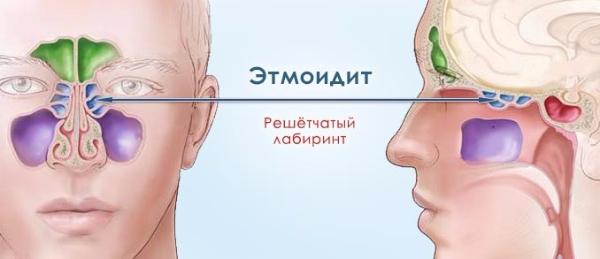 Этмоидальный синусит