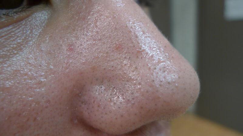 Жирная кожа на носу