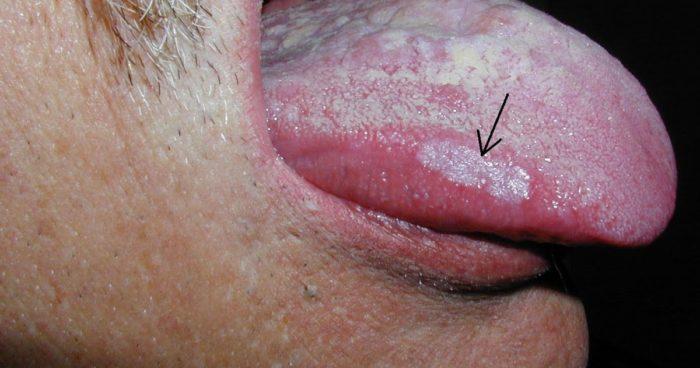 Белое пятно на языке у взрослого болит