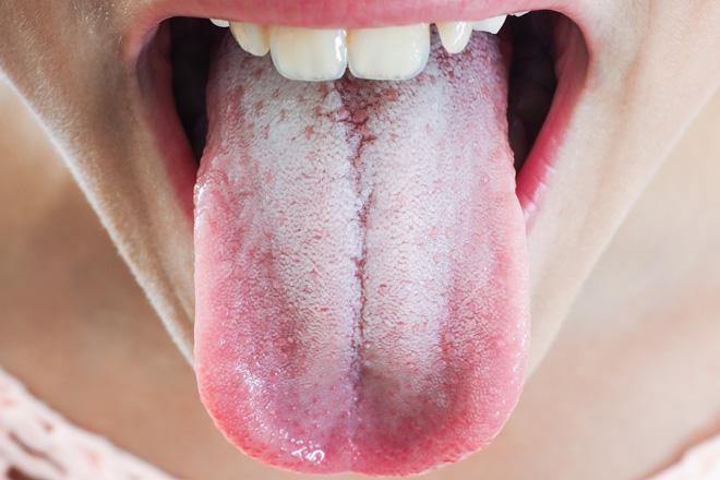 Желтый налет на зубах - причины у взрослых и детей, методы лечения
