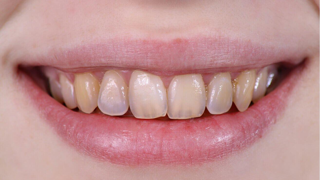 Как отбелить зубы активированным углем