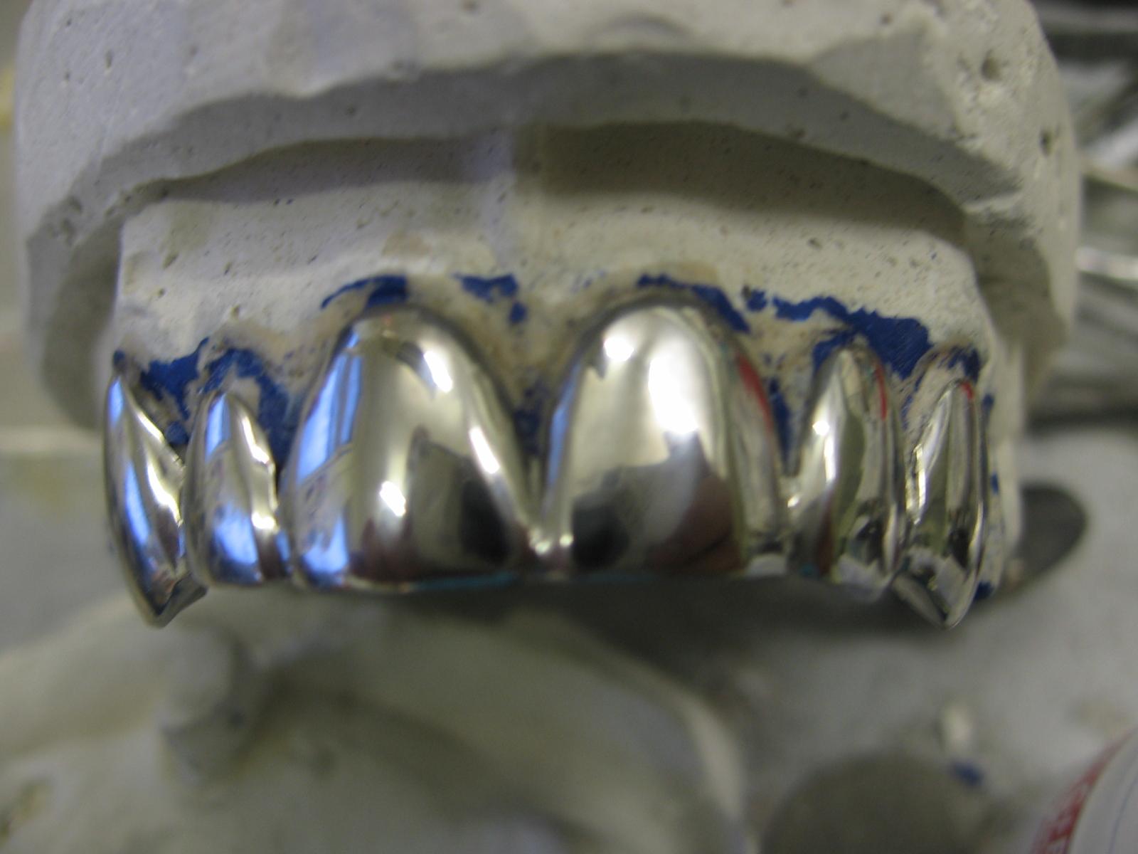 Штампованно паяные мостовидные протезы