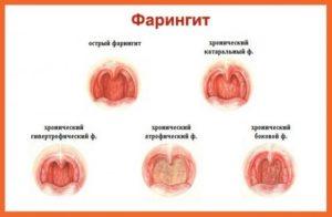 Сравнение форм фарингита