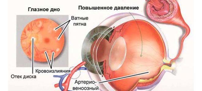Как лечить глазное давление в домашних условиях, причины и симптомы болезни - Здоровое око