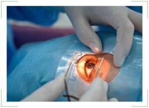 Операция по удалению глаза