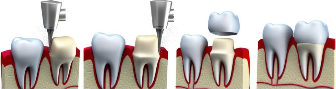 Больно ли ставить коронку на зуб