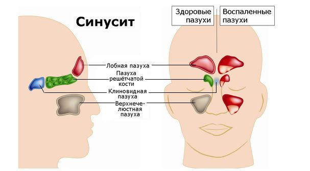 Что такое синусит