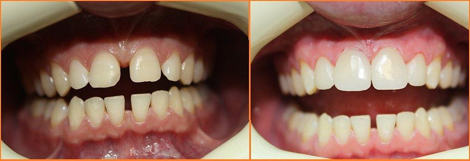 Редкие зубы