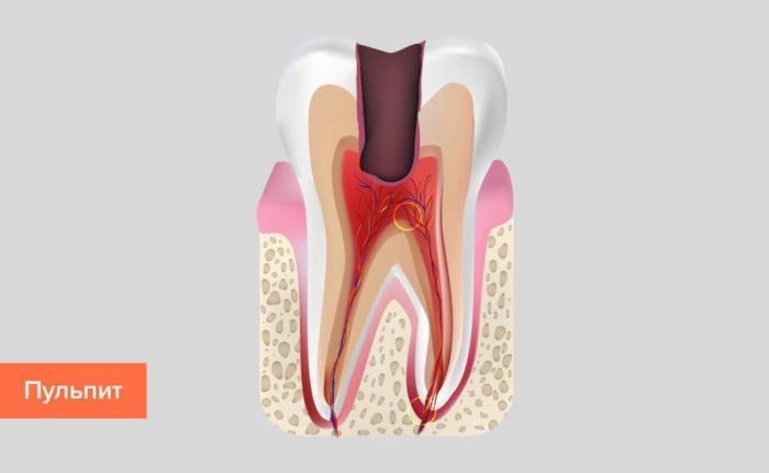 Болит зуб при нажатии на него
