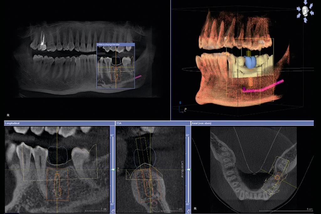 МРТ челюсти