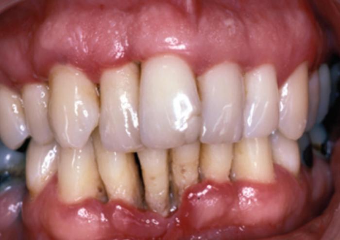 Что такое язвенно-некротический гингивит?