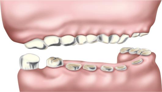 Патологическая стираемость зубов