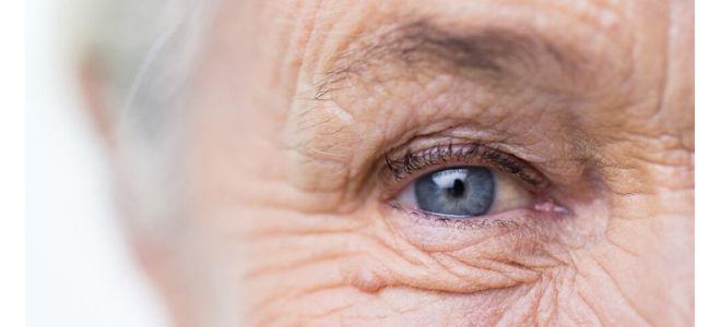 Сенильная (возрастная) катаракта