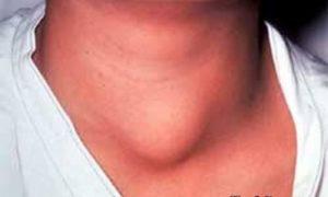 Опухоль щитовидной железы: симптомы и лечение