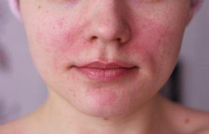 Ожог на лице от крема, что делать?