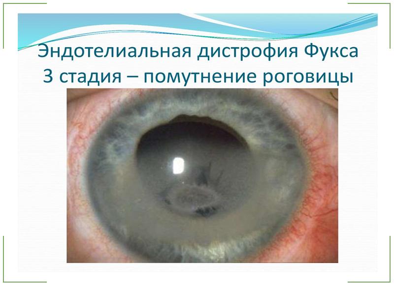 Эндотелиальная-дистрофия-Фукса