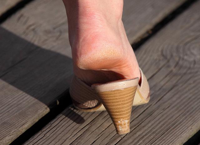 натоптыши на ногах, ступнях