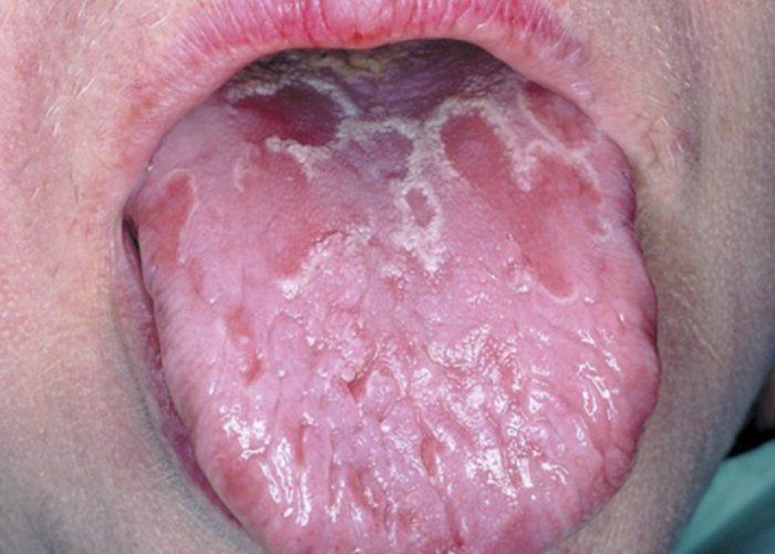 Чем опасен десквамативный глоссит?