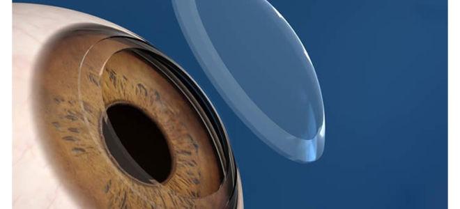 Кератопластика (операция по пересадке роговицы глаза)