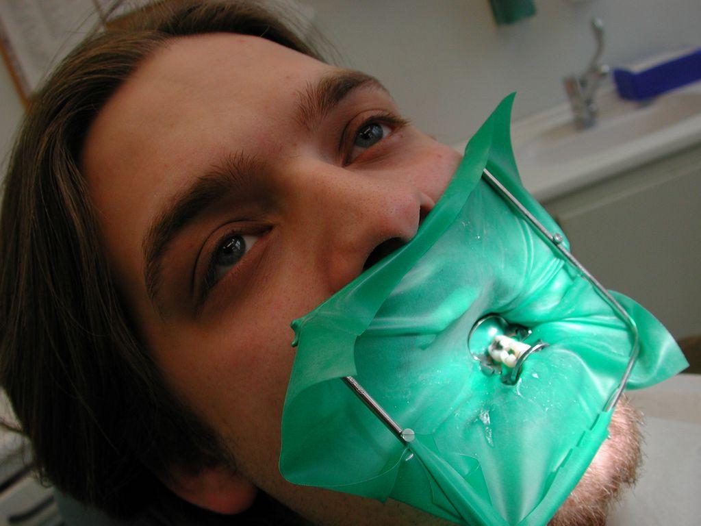Коффердам в стоматологии