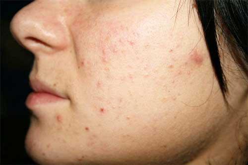 азитромицин воздействует на кожу