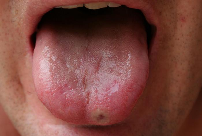 Почему появляются язвы на языке и как их лечить?