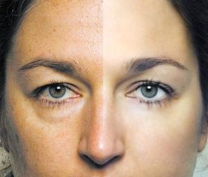 отечность лица у женщин: причины