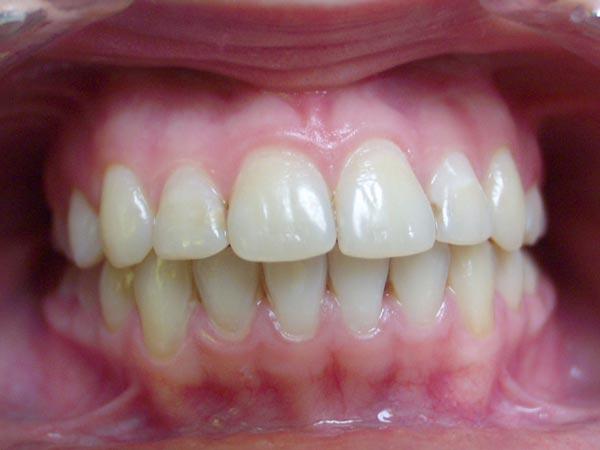 До скольки лет растут зубы у детей