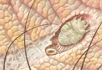 Чесотка – насколько опасно заболевание и чем лечить?