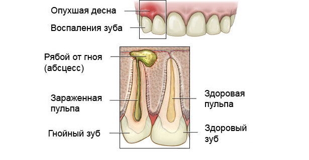 Абсцесс зуба