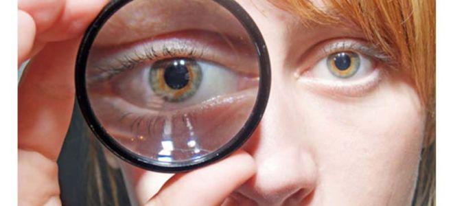 Один глаз видит хуже другого как называется