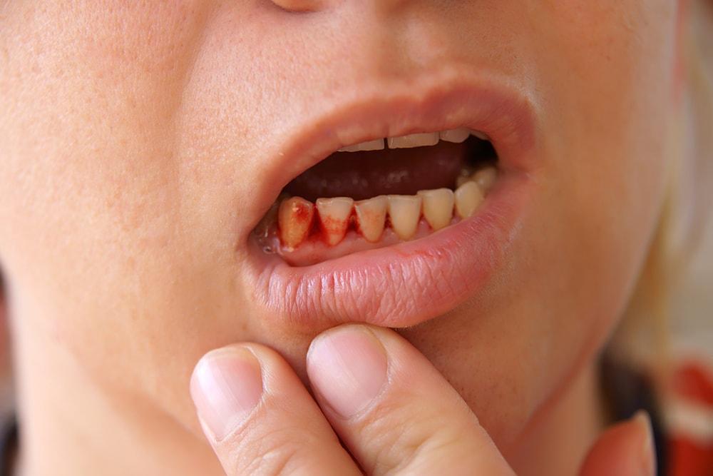 Чем можно вылечить кровоточивость дёсен?