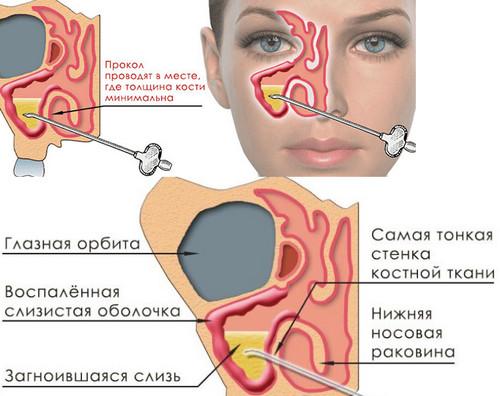 Как проводится пункция гайморовой пазухи