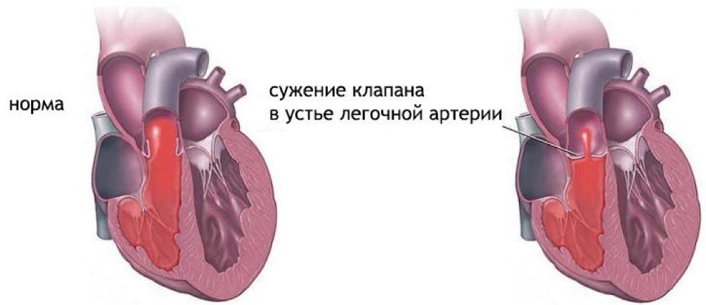 suzhenie-klapana-legochnoy-arterii