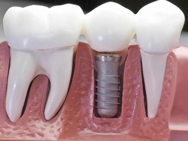 Наращивание зубов на штифт — восстановление зубного ряда