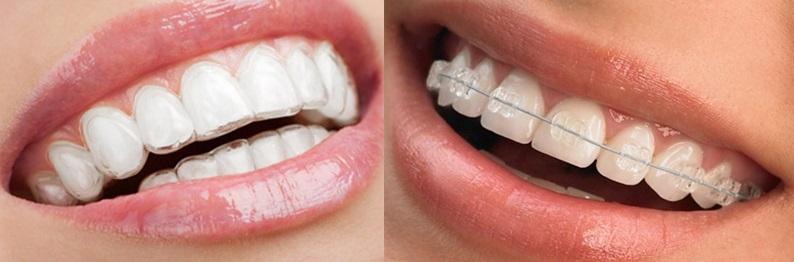 Капа для зубов с брекетами