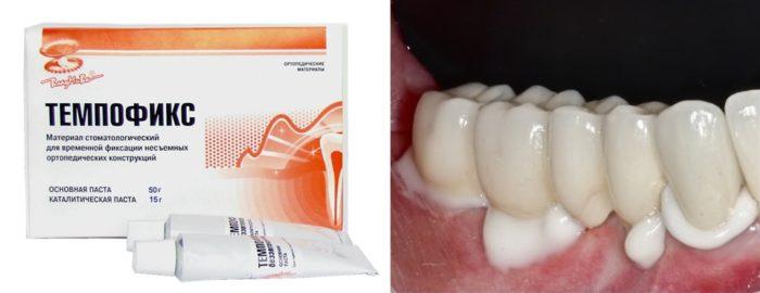 Клей для зубных коронок