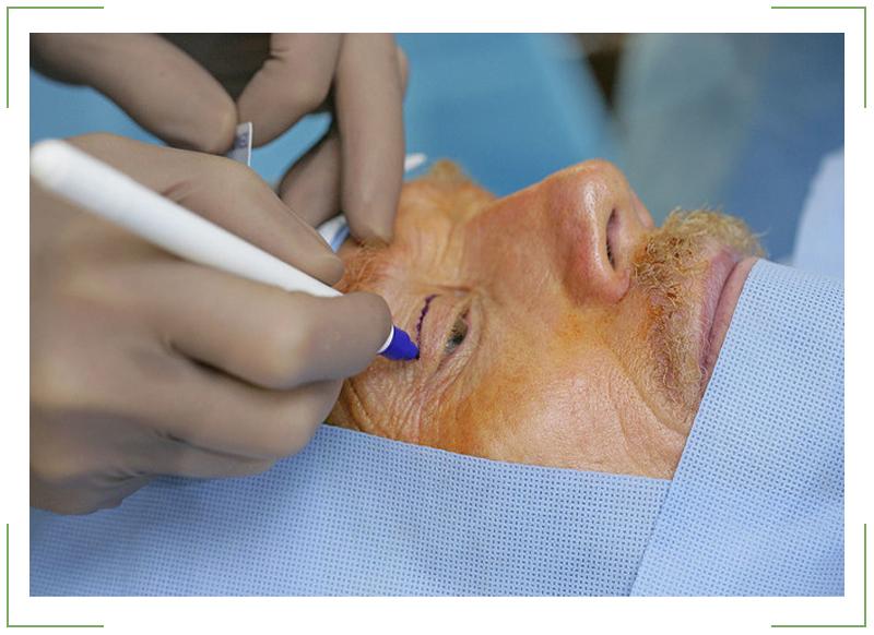 Хирургическое-лечение