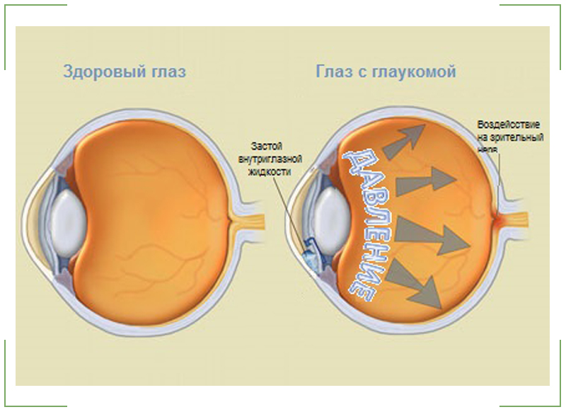 Здоровый-глаз-и-глаз-с-глаукомой