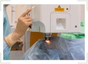 Лазерная коррекция зрения методом Фемто ЛАСИК (Femto LASIK)