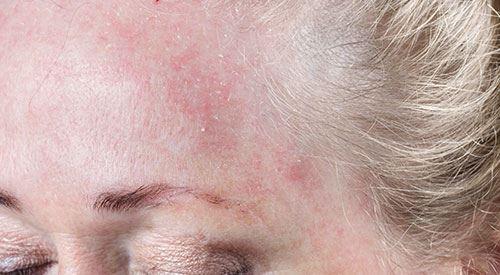 Все негативные стороны бытового кондиционера для нашей кожи как их избежать?