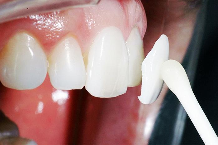 Трещины на зубах: чем опасны, как распознать