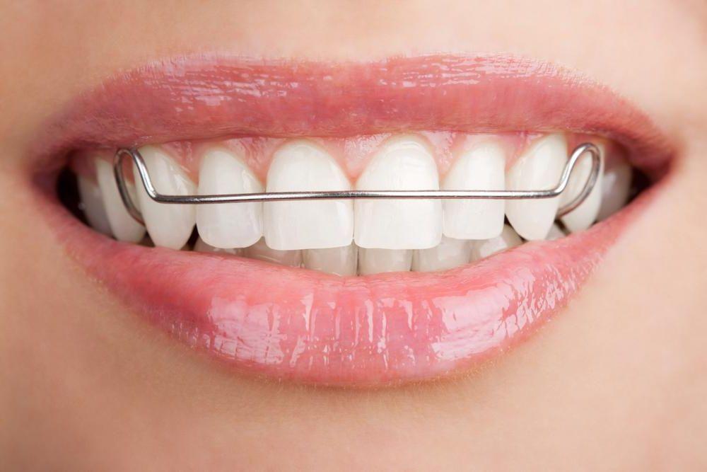 Пластины на зубы: конструкция, преимущества и недостатки, процесс установки