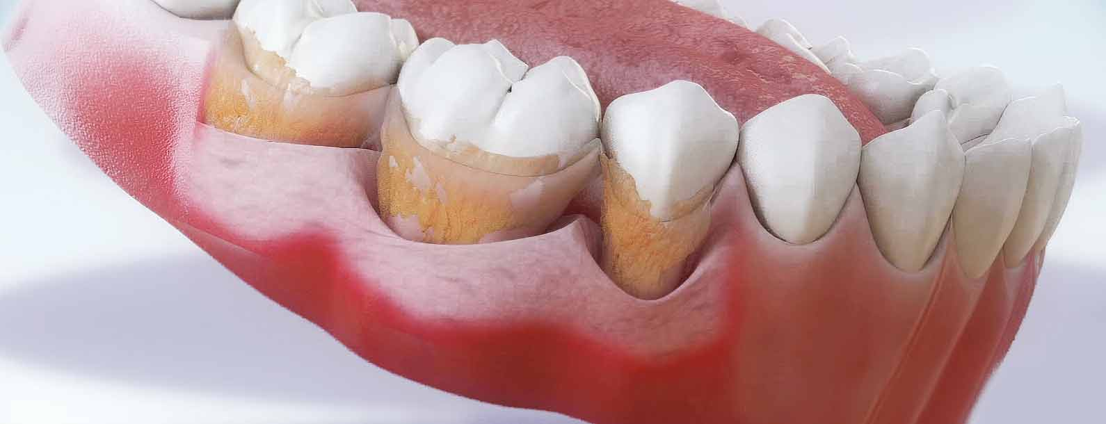 Таблетки для индикации зубного налета