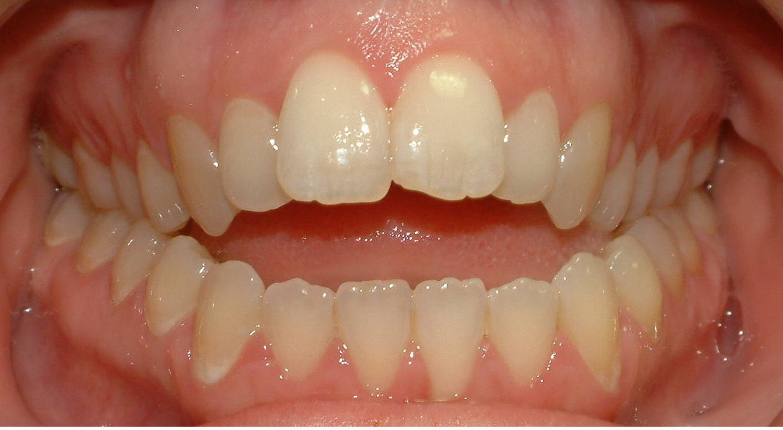 прикус зубов