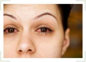 Как снизить глазное давление